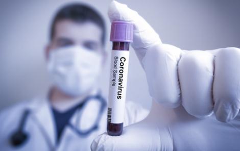 تسجيل 3 حالات اصابة جديدة بفيروس كورونا بالحسيمة
